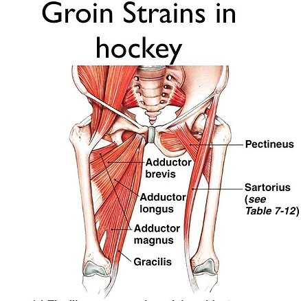 Groin Injuries in Hockey