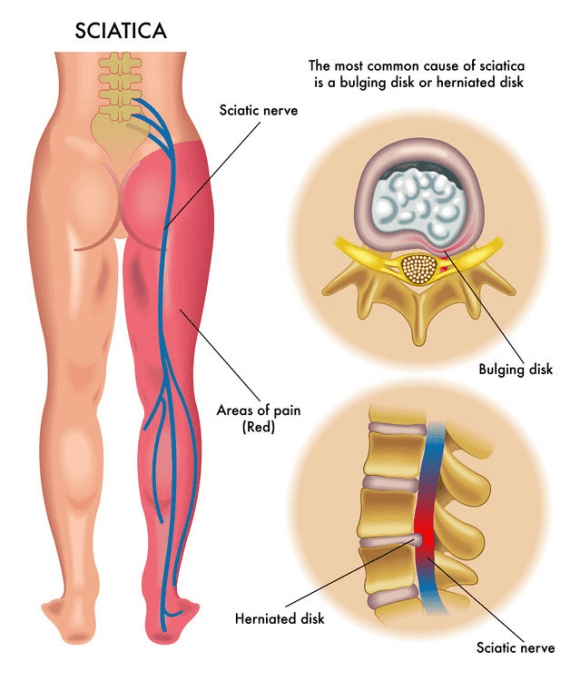 Sciatica and Low Back Pain