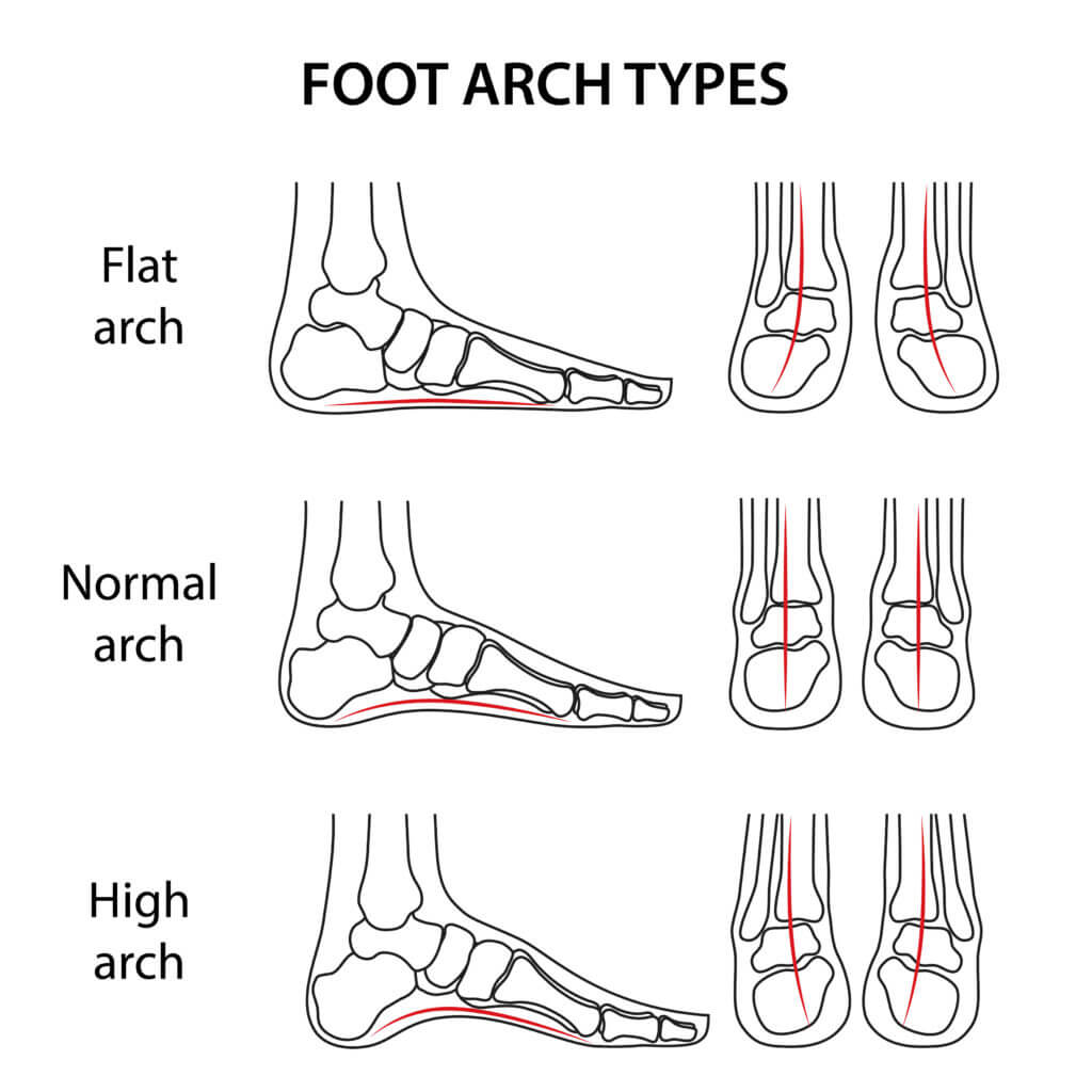 foot arch types
