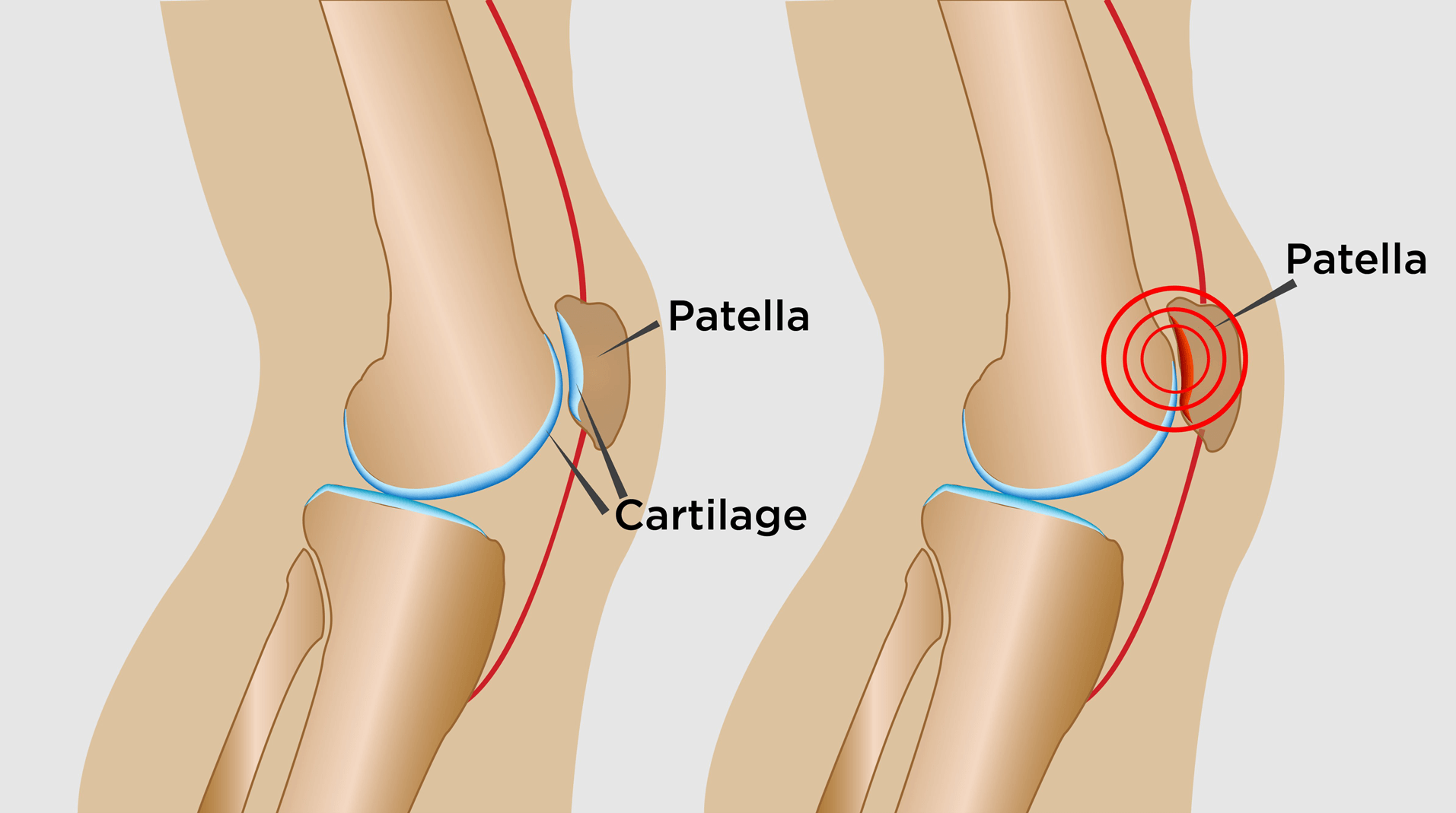 Knee Pain Treatment in Mississauga